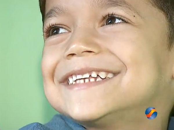 Criança de 5 Anos Tem Oito Dedos no Pé Direito